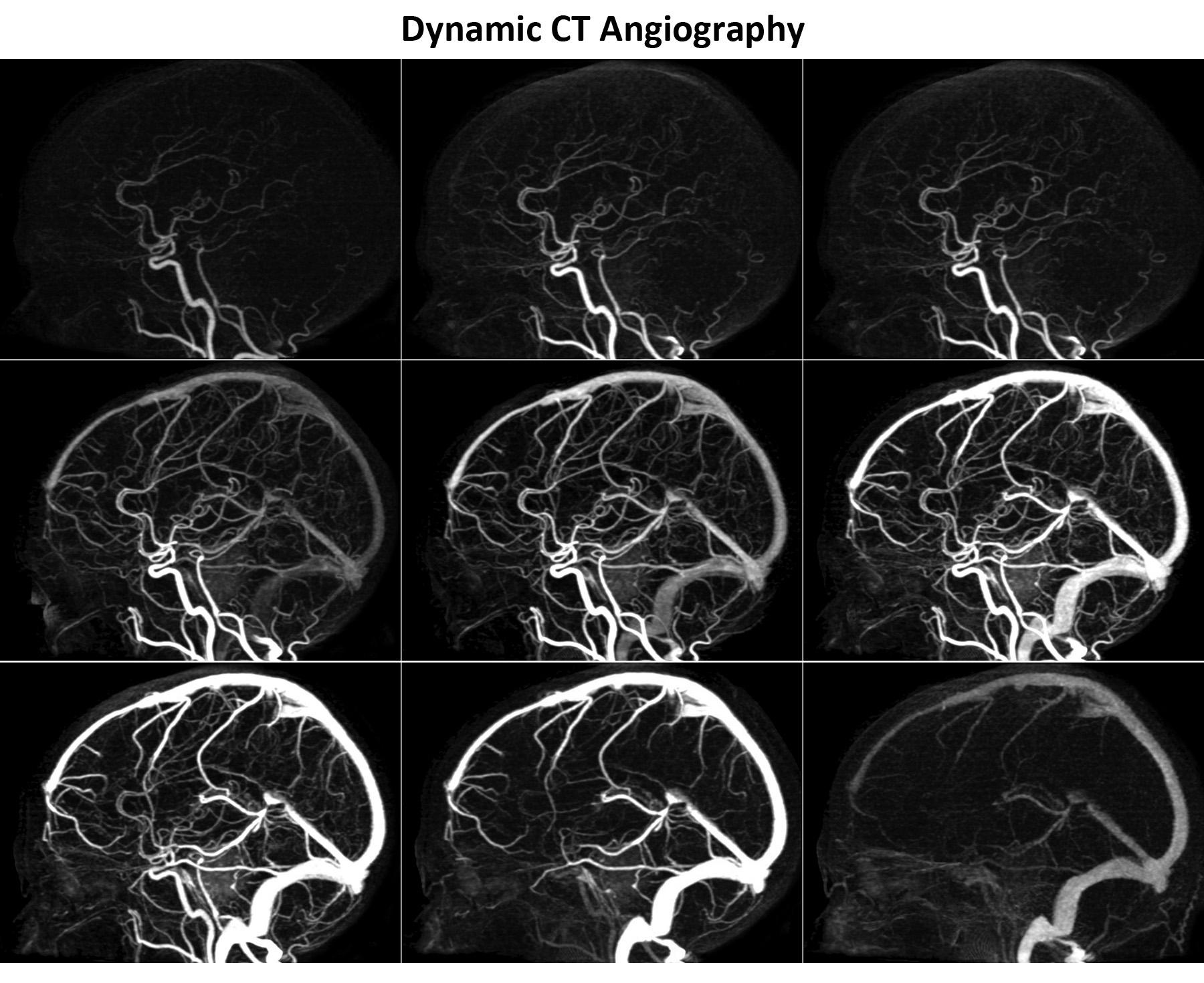 Dunn Laboratory   Skull Base Tumor Imaging